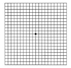 Amsler-Grid-for-Macular-Pucker