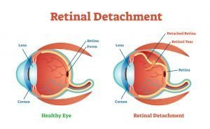Retinal Detachment - NYC Retina