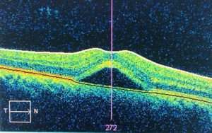 Central Serous Retinopathy Using Optical Coherence Tomography